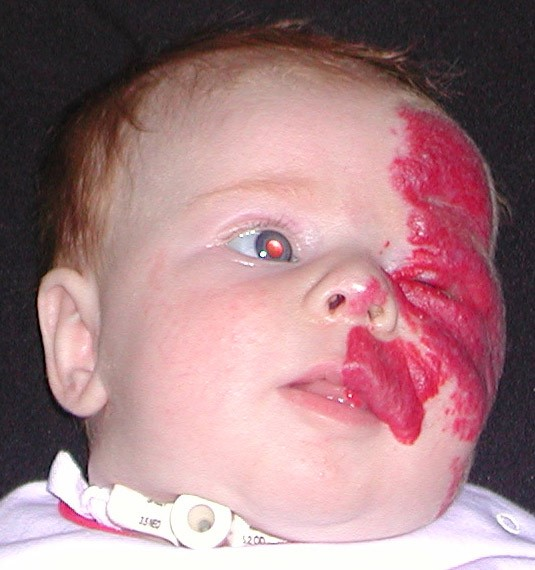 <p><span><strong>Facial and sub-glottic haemangioma</strong><br /> </span> 6 weeks old. <span>Emergency tracheostomy fitted at 5 weeks<br />  <strong>1 of 4 </strong></span></p>