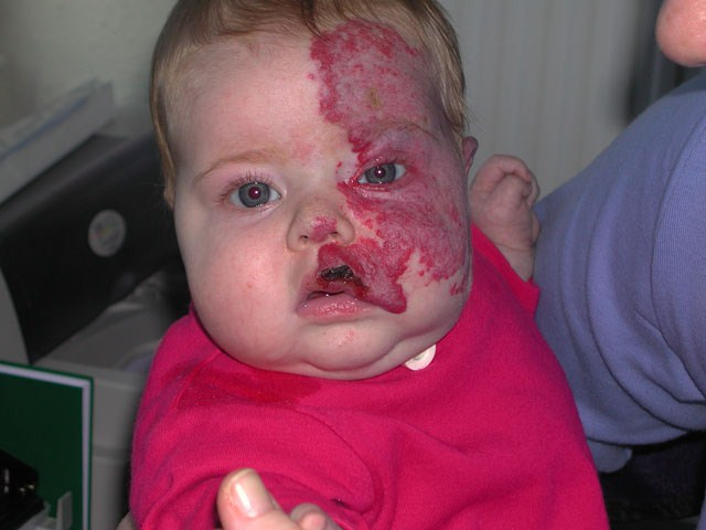 <p><strong>Facial and sub-glottic haemangioma</strong><br />  5 months. Still taking oral steroids. The haemangioma has gone through some ulceration.<br />  <strong>3 of 4 </strong></p>