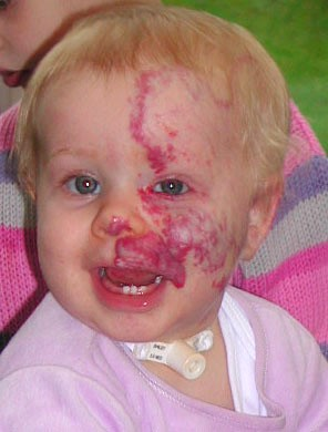 <p><strong>Facial and sub-glottic haemangioma</strong><br />  1st birthday. Still taking oral steroids.<br />  <strong>4 of 4 </strong></p>
